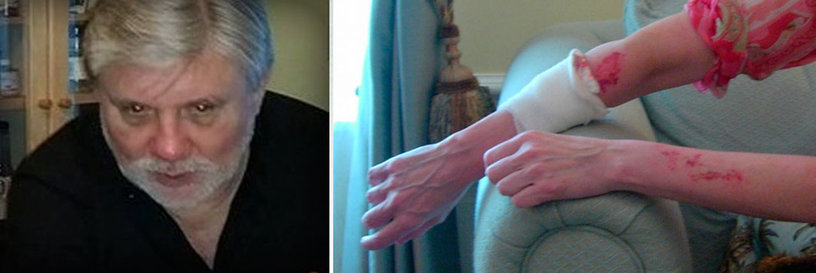 Mike Rinder and his wife's arm after Mike beat her